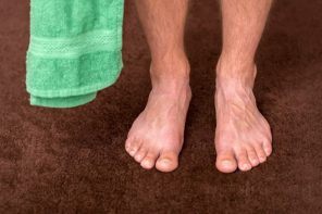 Toenail Fungus How to Prevent It