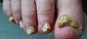 Toenail fungus photo