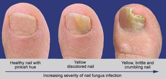 Toenails progression