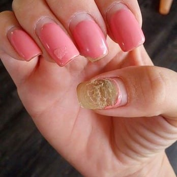7 Tips To Treat Nail Fungus Caused By Acrylic Nails Toenails